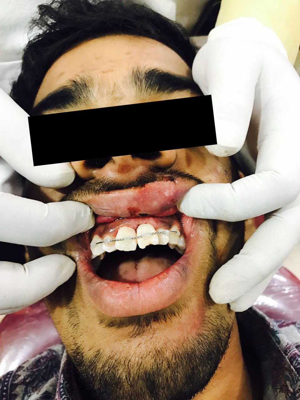 Avulsion-case-1-2