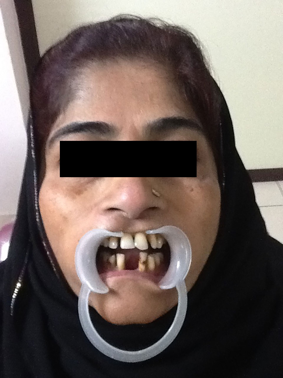 Full Mouth Rehabilitation Case 4 1