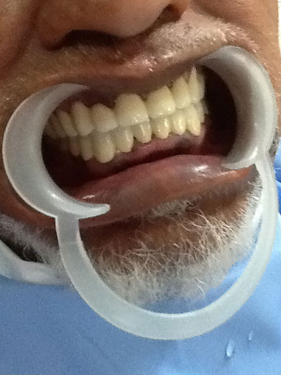 Full Mouth Rehabilitation Case 5 2