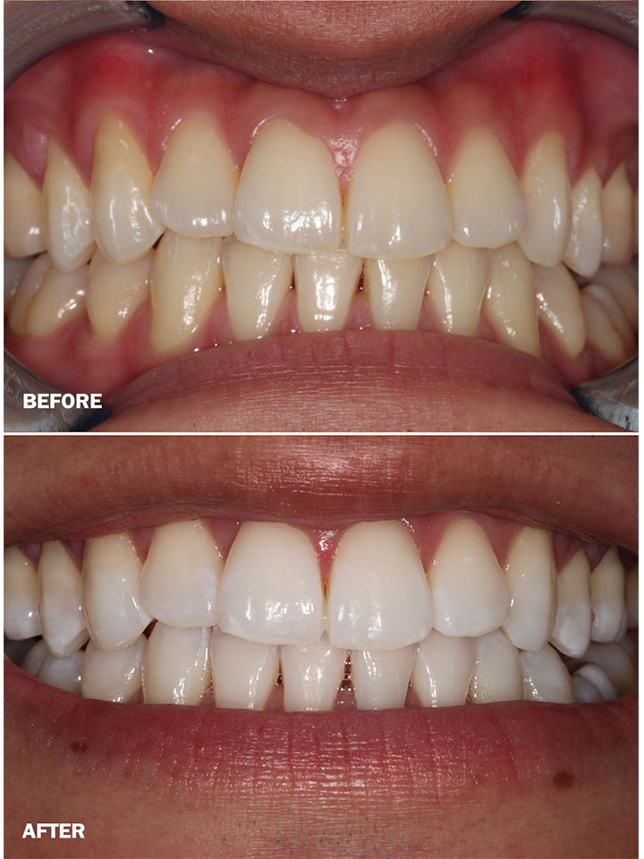 0_0000_Teeth whitening Case1